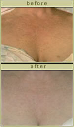 Skin Discoloration Before After